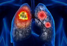 Дыши легко: как улучшить здоровье легких за пять шагов
